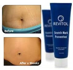 Revitol-Stretch-Mark-Solution before and after photo
