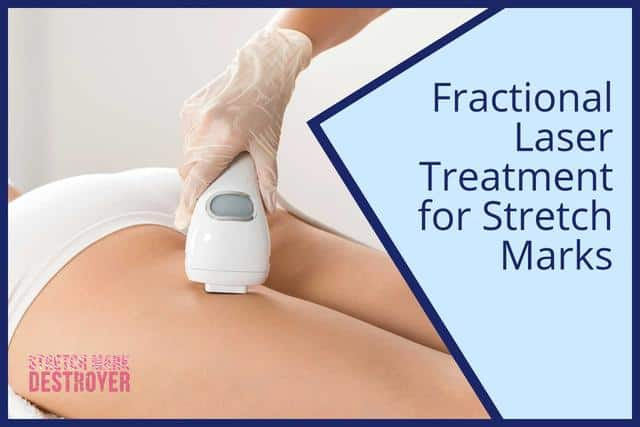 Using Fractional Laser Skin Resurfacing | Is it Worthwile?