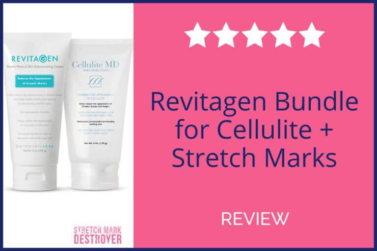 RevitaGen Stretch Mark Cream Review